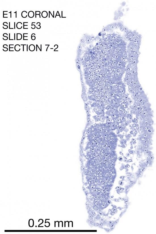 53-E11-coronal-6-7-2