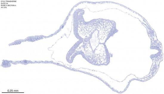 54-E10-5-coronal-5-4