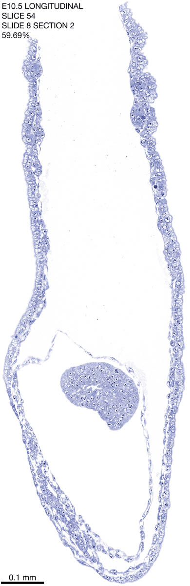 54-E10-5-sagittal-8-2
