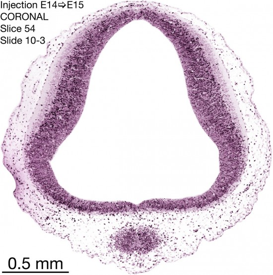 54-E14-to-15-coronal-10-3