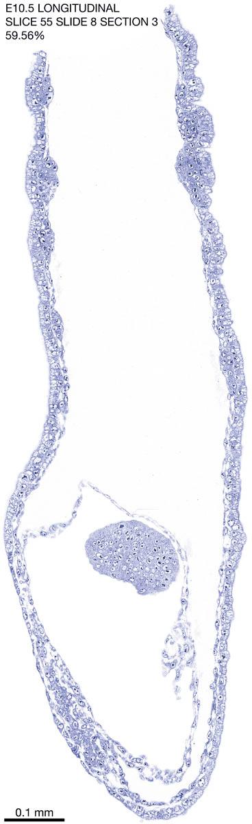 55-E10-5-sagittal-8-3