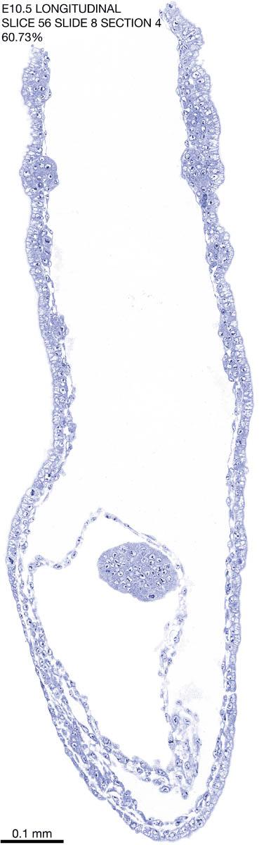 56-E10-5-sagittal-8-4