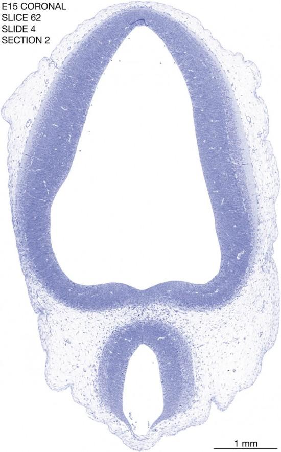 62-E15-coronal-4-2