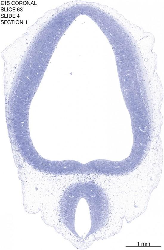 63-E15-coronal-4-1