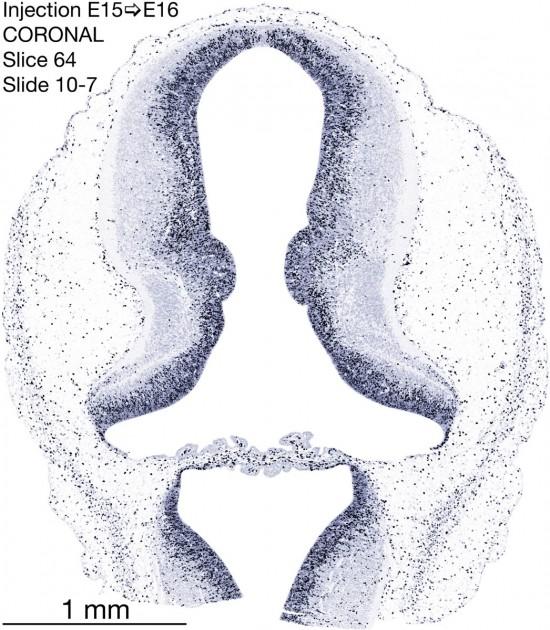 64-E15-to-16-coronal-10-7