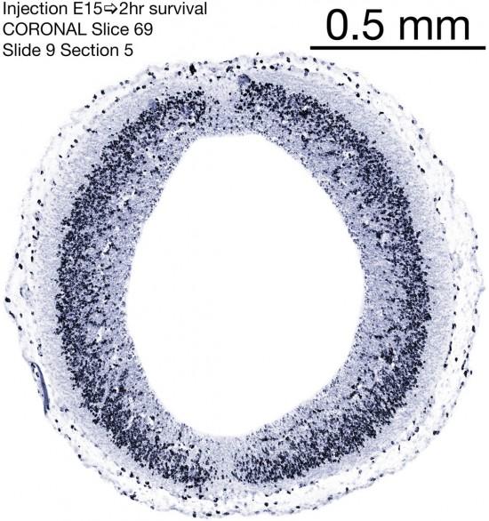 69-E15-2-hr-coronal-9-5