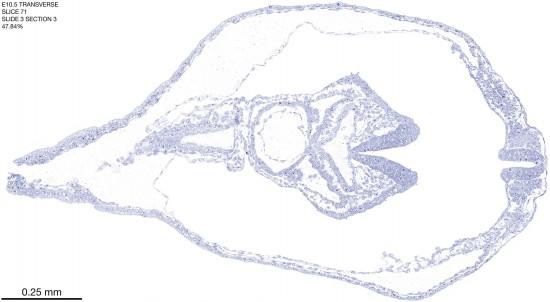 71-E10-5-coronal-3-3