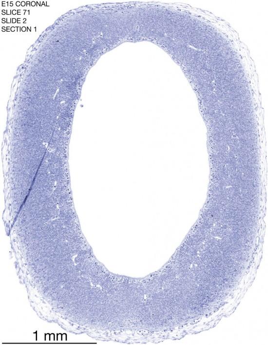 71-E15-coronal-2-1