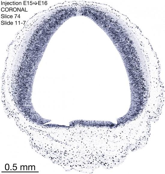 74-E15-to-16-coronal-11-7