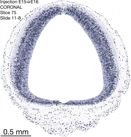 75-E15-to-16-coronal-11-8