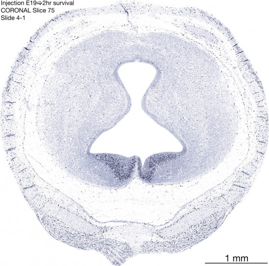 75-E19-2-hr-coronal-4-1
