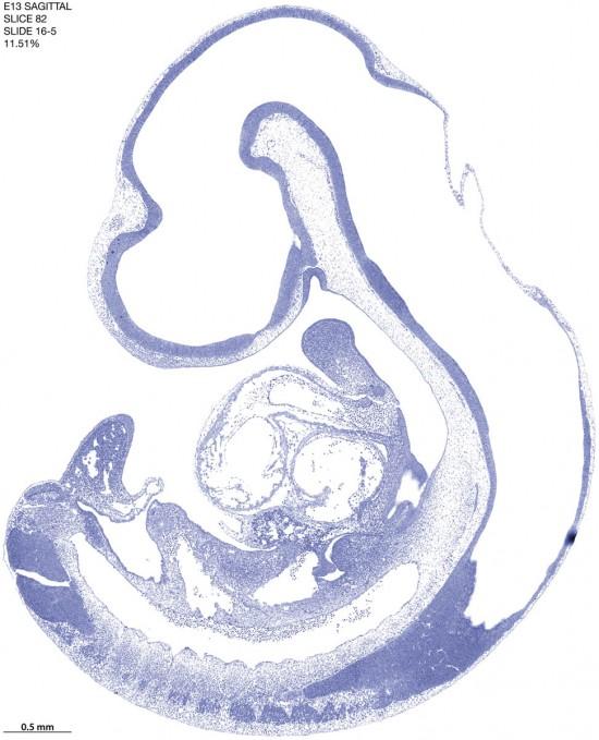 82-E13-sagittal-16-5