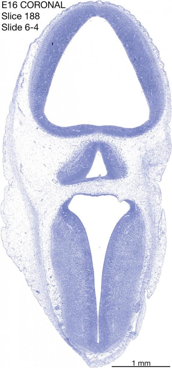 188-E16-coronal-6-4
