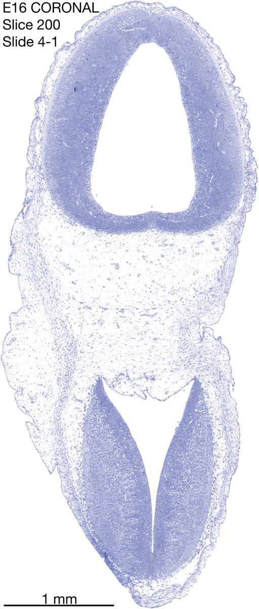 200-E16-coronal-4-1
