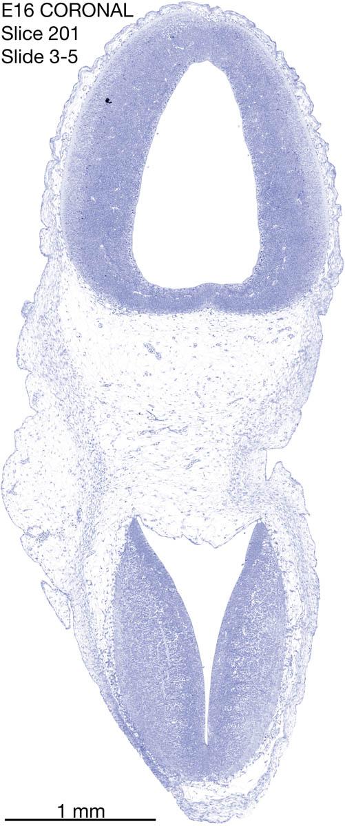 201-E16-coronal-3-5
