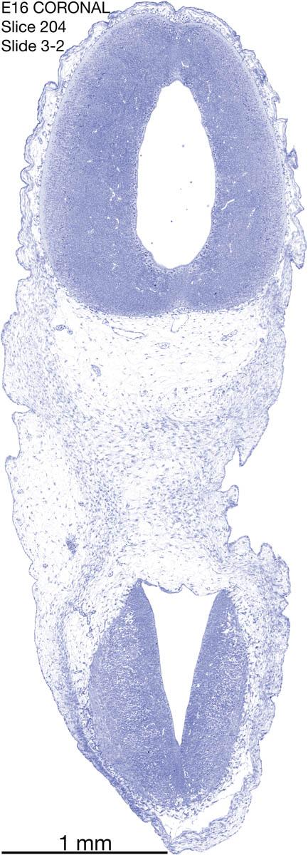 204-E16-coronal-3-2
