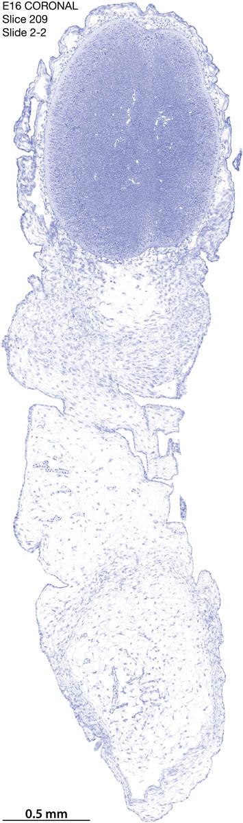 209-E16-coronal-2-2