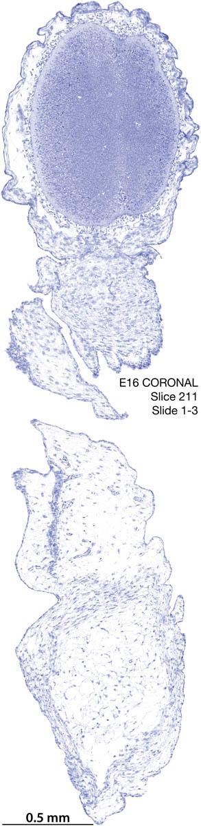 211-E16-coronal-1-3