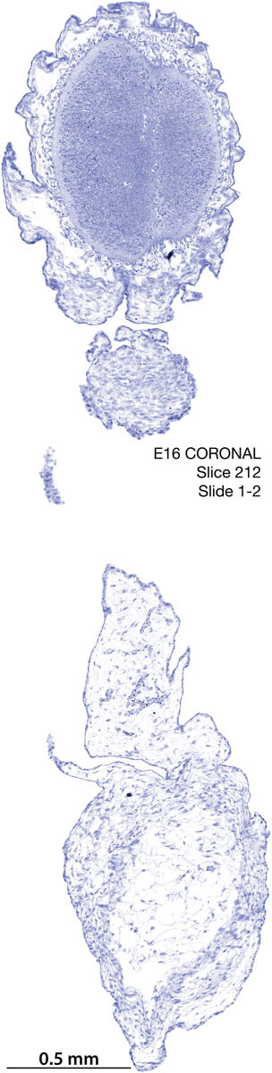 212-E16-coronal-1-2