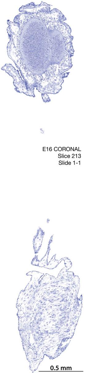 213-E16-coronal-1-1