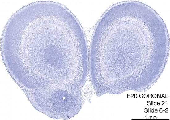 021-E20-Coronal-06-2