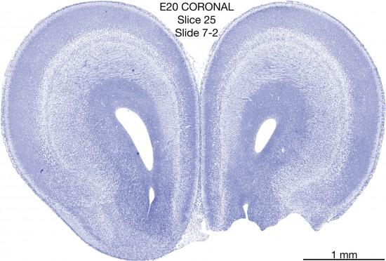 025-E20-Coronal-07-2