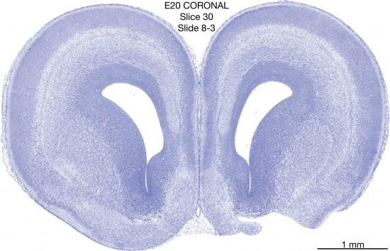 030-E20-Coronal-08-3