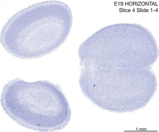 04-E19-Horizontal-01-4