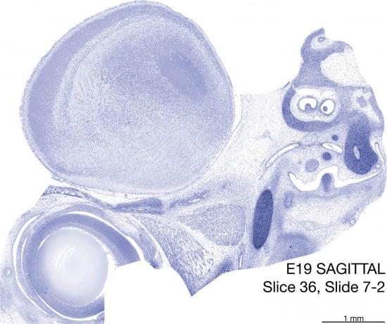 36-E19-Sagittal-7-2