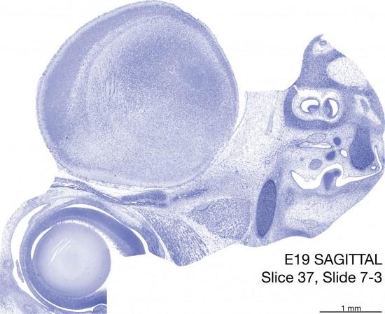 37-E19-Sagittal-7-3
