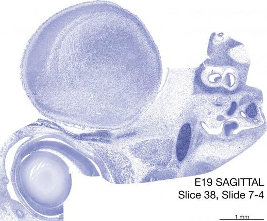 38-E19-Sagittal-7-4