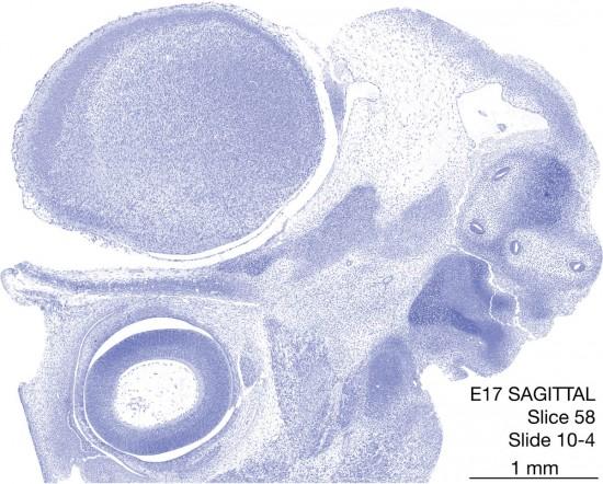 58-E17-sagittal-10-4