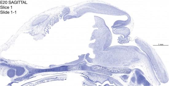 01-E20-sagittal-01-1