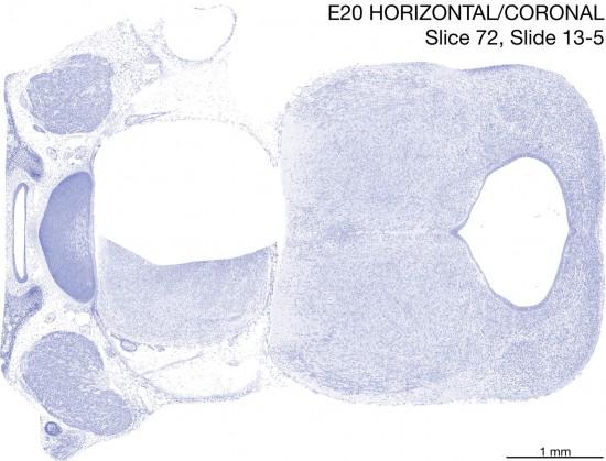 072-E20-horiz-cor-13-5