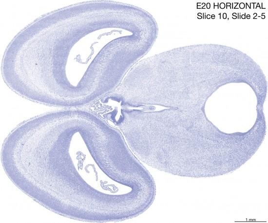 10-E20-horizontal-02-5