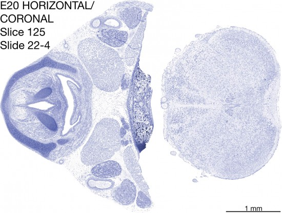 125-E20-horiz-cor-22-4