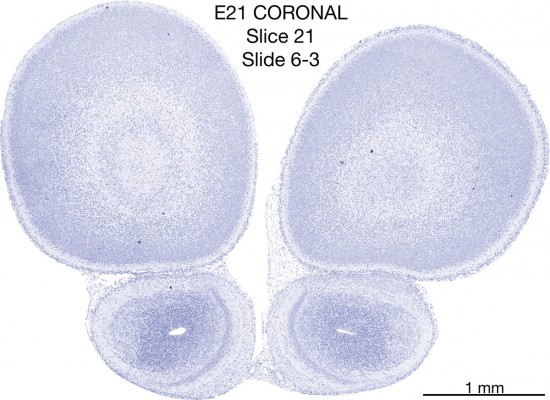 021-E21-coronal-06-3