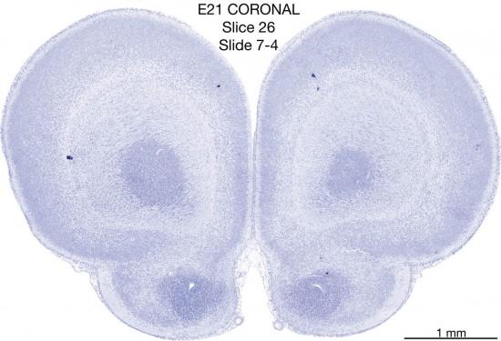 026-E21-coronal-07-4