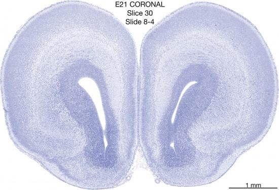 030-E21-coronal-08-4