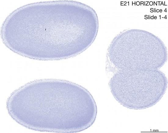 04-E21-horizontal-01-4