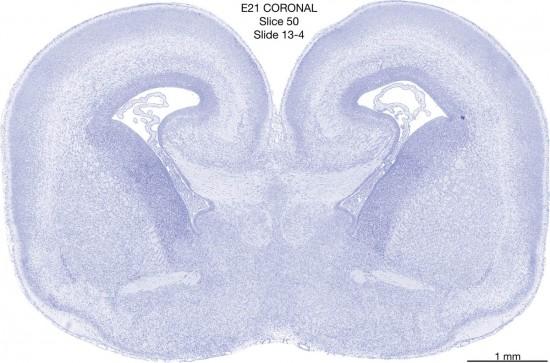 050-E21-coronal-13-4