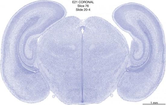 076-E21-coronal-20-4