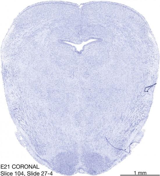 104-E21-coronal-27-4