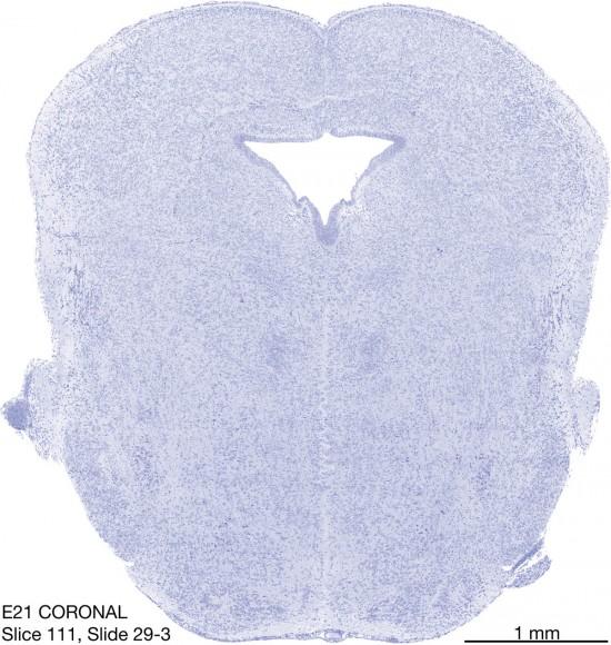 111-E21-coronal-29-3