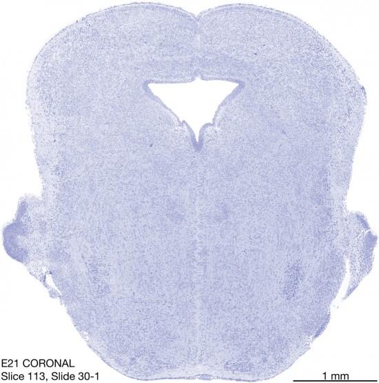 113-E21-coronal-30-1