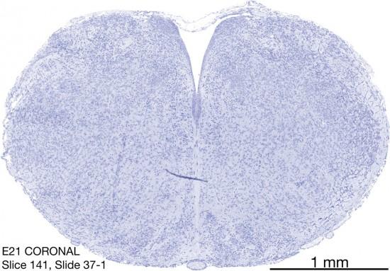 141-E21-coronal-37-1