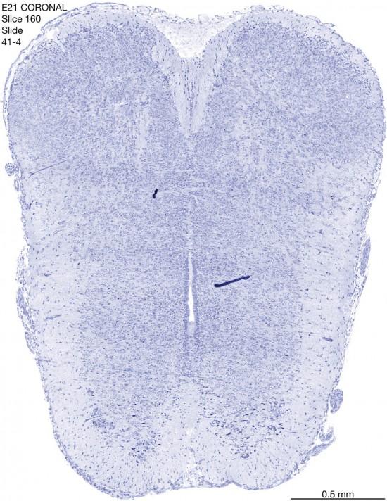 160-E21-coronal-41-4