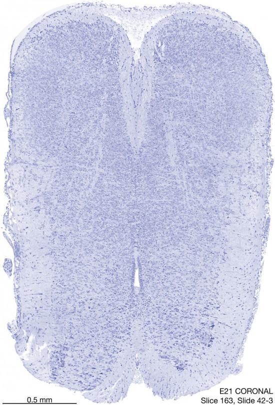 163-E21-coronal-42-3