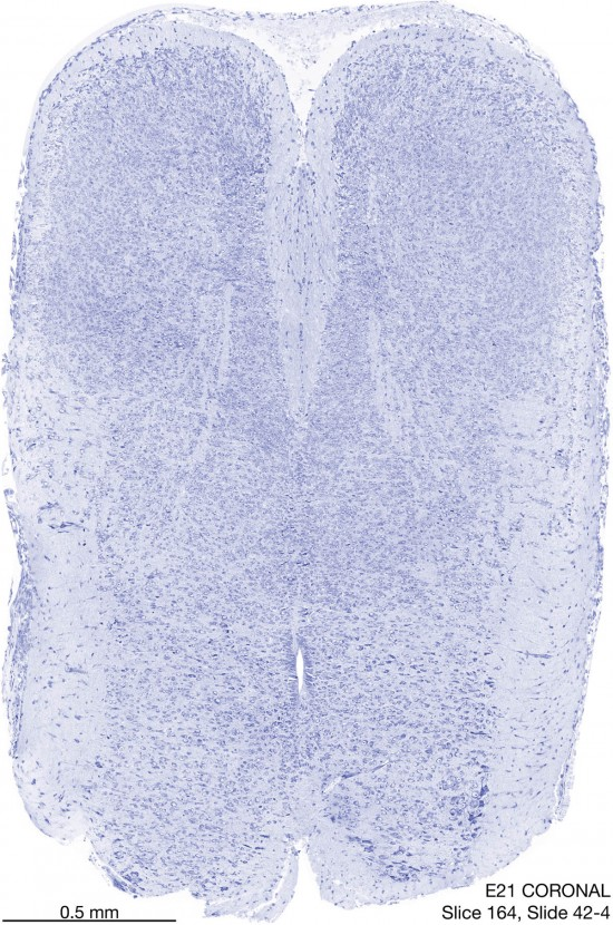 164-E21-coronal-42-4