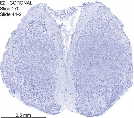 170-E21-coronal-44-2
